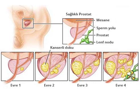prostat-kanseri-evreleri