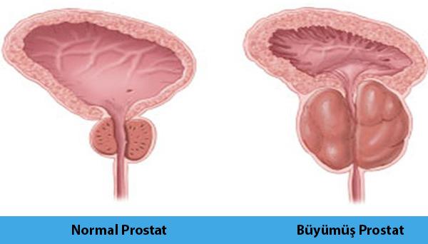 prostat_büyümesi_bursa
